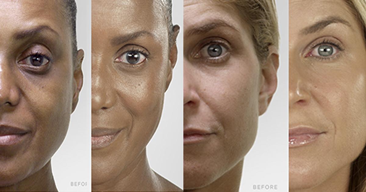La carrera de los productos antienvejecimiento con resultados instantáneos